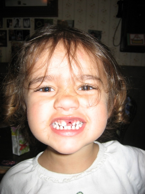 The missing tooth.